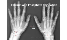 Ch. 10 Calcium and Phosphate Regulation
