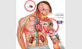Copy of hipertension