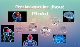 Cerebrovascular disease (Stroke)