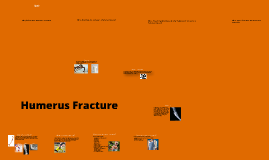 Sports Injuries - Humerus Fracture