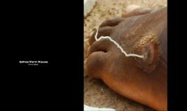 Guinea Worm