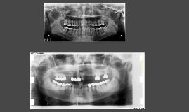 Cemento-osseous dysplasia