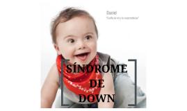 Copy of Sindrome de Down
