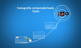 Tomografía computarizada TDAH