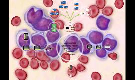 Copy of Clasificación de Leucemias y Aspectos generales de la Leucem