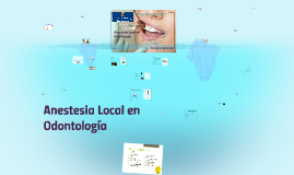 Anestesia Local en Odontologia I