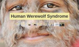 Human Werewolf Syndrome