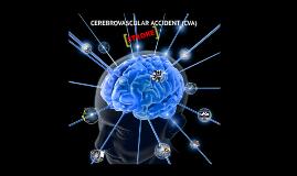 cerebrovascular accident by david isthename on prezi