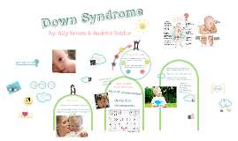 Copy of Down Syndrome