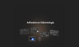 Copy of Adhesión en Odontología