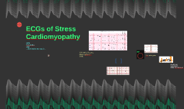 ECGs of Stress Cardiomyopathy