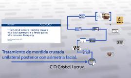 Tratamiento de mordida cruzada unilateral posterior con asim