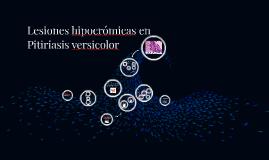 Lesiones hipocrómicas en Pitiriasis versicolor