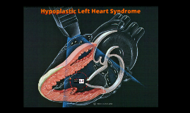 Copy of Hypoplastic Left Heart Syndrome