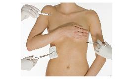 Auge del aumento mamario a través de prótesis en Venezuela