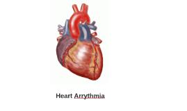 Heart Arrythmia