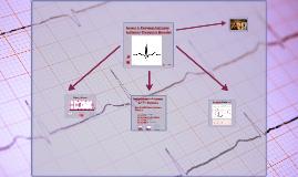 Trazado de EKG