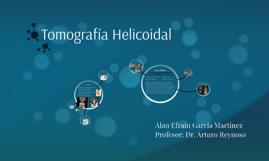 Tomografía Helicoidal