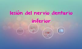 lesión del nervio dentario inferior