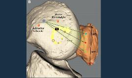 Reconstruccion ligamento patelofemoral medial