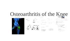 Copy of Copy of Osteoarthritis of the Knee