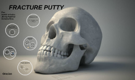 Bone putty