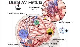 Dural AV Fistula