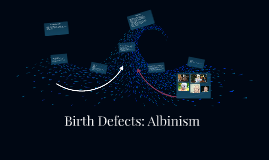 Birth Defects: Albinism