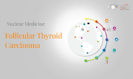 Follicular Thyroid Carcinoma - (World timeline Prezi)