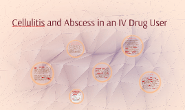 Cellulitis and Abscess in an IV Drug User
