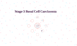 Stage 3 Basal Cell Carcinoma