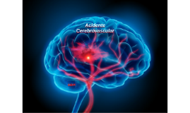 Acidente Cerebrovascular