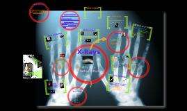 X-Rays!