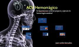 Copy of Copy of ACV Hemorrágico