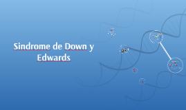 Sindrome de Down y Edwards