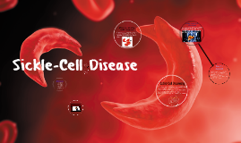 Copy of Sickle-Cell Disease
