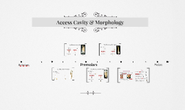 Access Cavity & Morphology