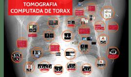 Copy of TOMOGRAFIA COMPUTADA DE TORAX