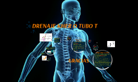 Copy of DRENAJE KHER O TUBO T