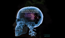 Visualizing motor moments of autism