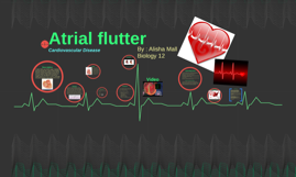 Atrial Flutters