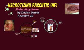 Necrotizing Fasciitis (n