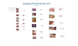 Neonatale huidafwijkingen