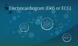 Electrocardiogram (EKG or ECG)