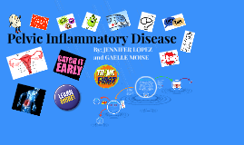 Copy of Pelvic Inflammatory Disease