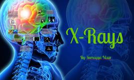 X-Rays Sumayya