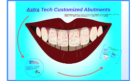 Astra Tech Customized Abutments