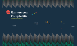 Rasmussen's Encephalitis