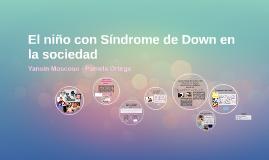 El niño con Síndrome de Down en la sociedad
