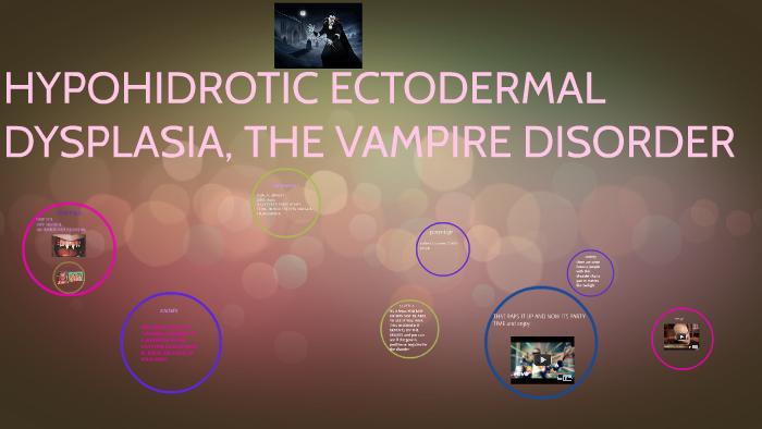 HYPOHIDROTIC ECTODERMAL DYSPLASIA, THE VAMPIRE DISORDER by